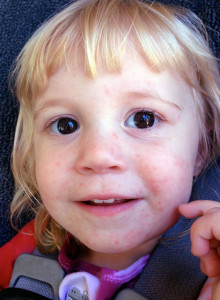 How I healed my toddler's dermatitis naturally: BrownThumbMama.com