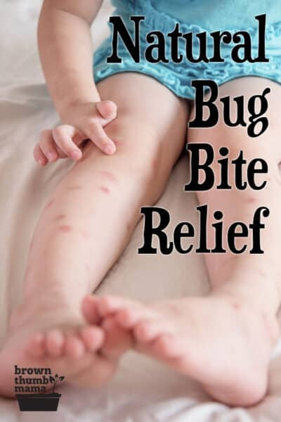 toddler with bug bites on legs