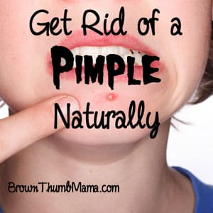 6 Ways to Get Rid of a Pimple, Naturally: BrownThumbMama.com