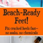 Fix Cracked Heels Fast
