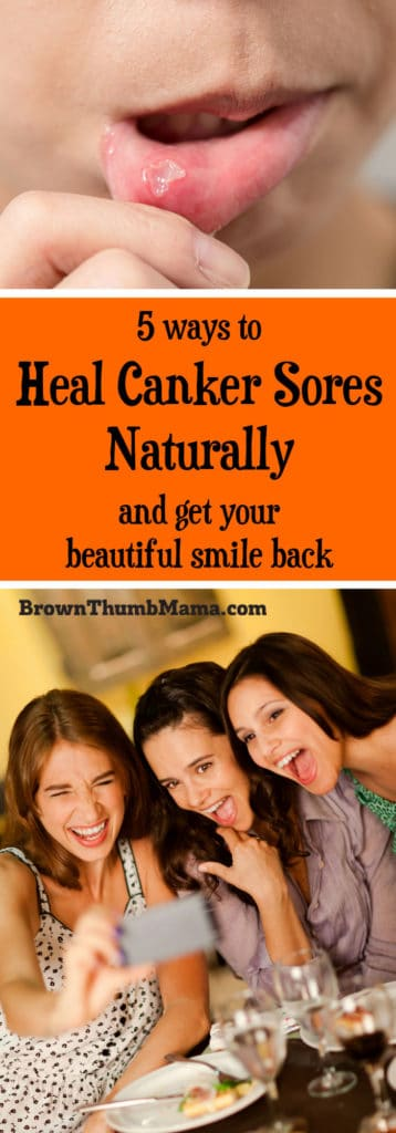 You can heal painful canker sores quickly and easily with these 5 natural tips. Safe for kids and adults!