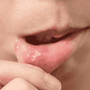 canker sore inside mouth